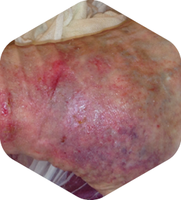 Case images demonstrating the healing process using HydroTherapy®: After 13 weeks full wound closure